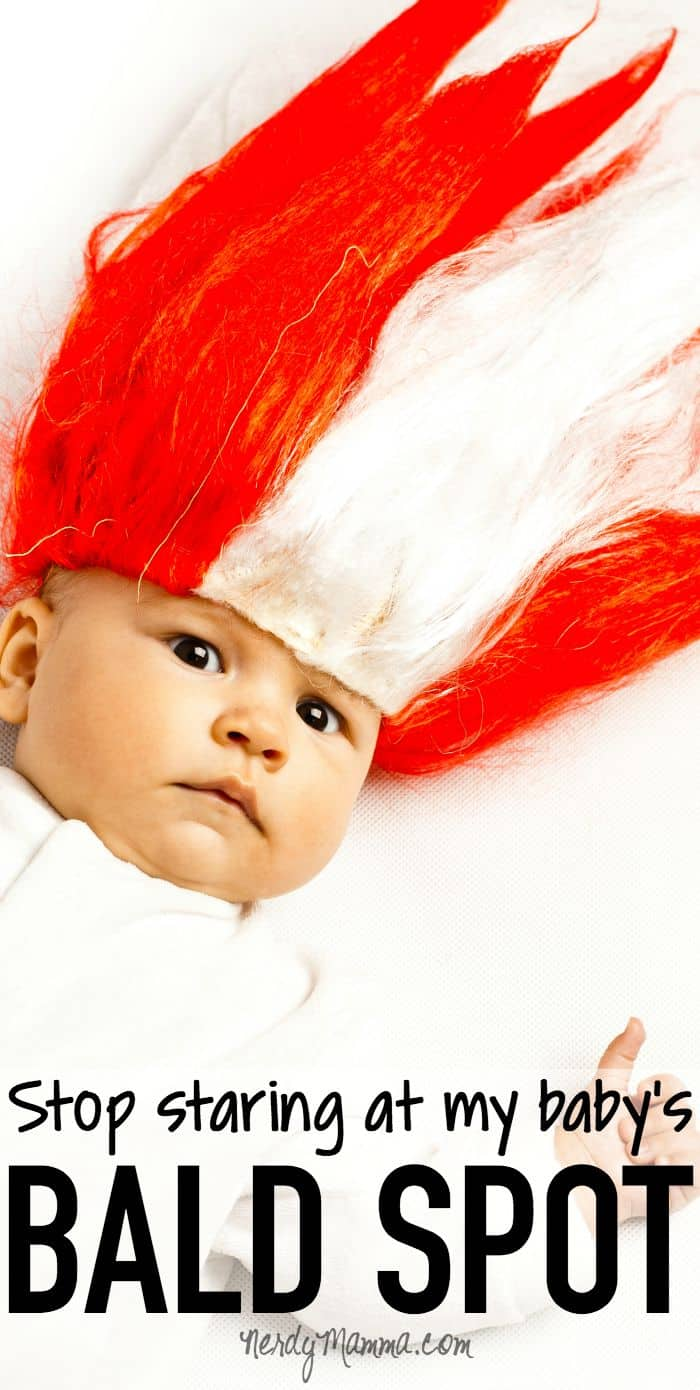 I don't stare at your kid's bald spot. Don't stare at mine. It's totally legit! LOL!