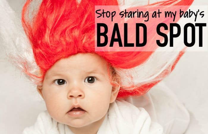 Stop Staring at My Baby's Bald Spot…