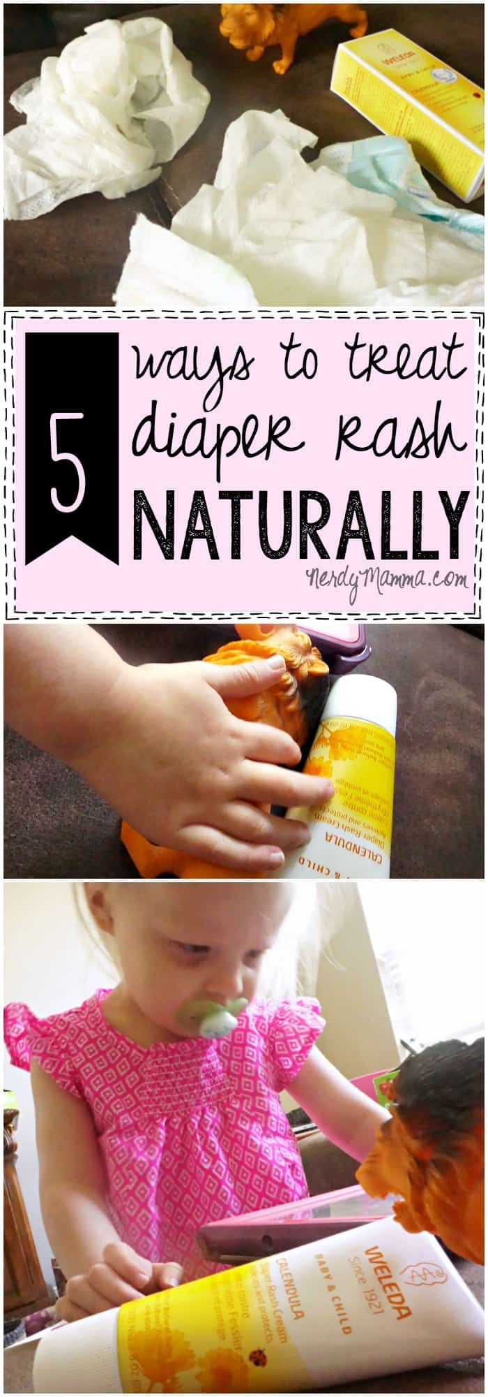 These 5 ways to treat diaper rash naturally are so easy. I never thought about it this way before!