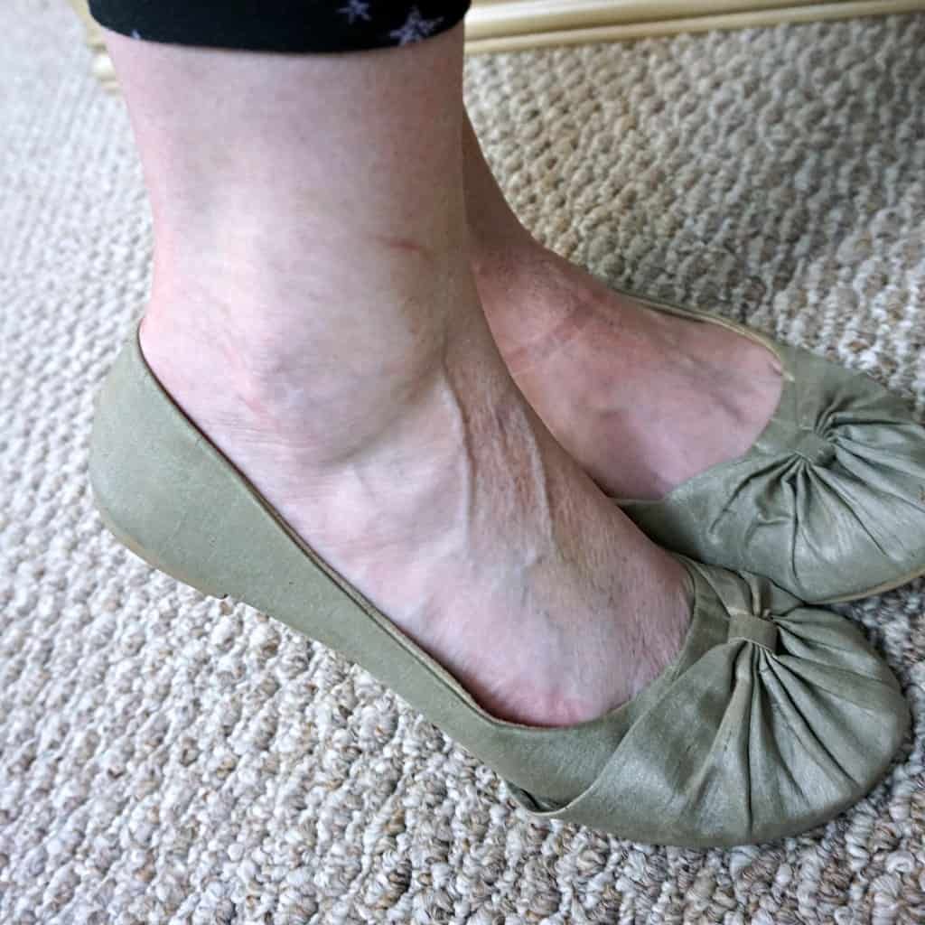 what I need to wear my favorite shoes again after pregnant sq